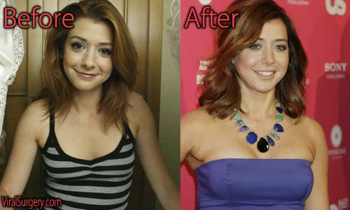 Alyson Hannigan Plastic Surgery Picture