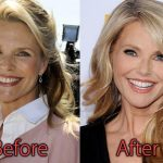 Christie Brinkley Plastic Surgery Before and After Pictures