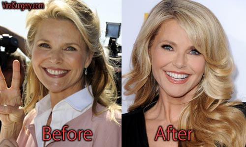 Christie Brinkley Plastic Surgery Picture