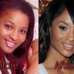 Ciara Plastic Surgery Before and After Pictures