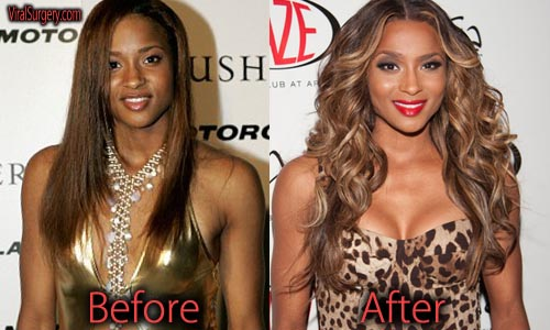Ciara Plastic Surgery Picture