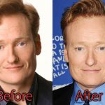 Conan O'brien Plastic Surgery Before and After Pictures