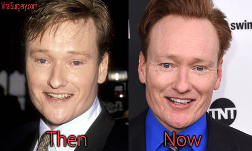 Conan O'Brien Plastic Surgery Picture