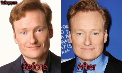 Conan O'Brien Plastic Surgery