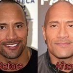 Dwayne Johnson Plastic Surgery Before and After Pictures