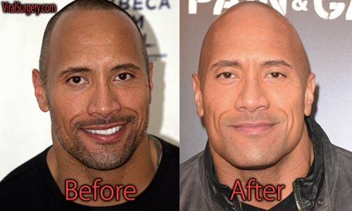 Dwayne Johnson Plastic Surgery Picture