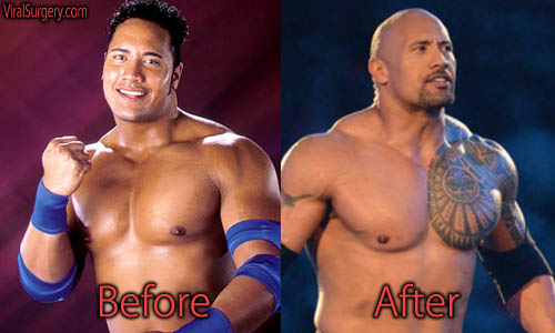 Dwayne Johnson Plastic Surgery, Before and After Liposuction Pictures