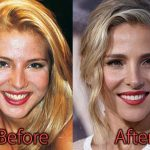 Elsa Pataky Plastic Surgery Before and After Pictures