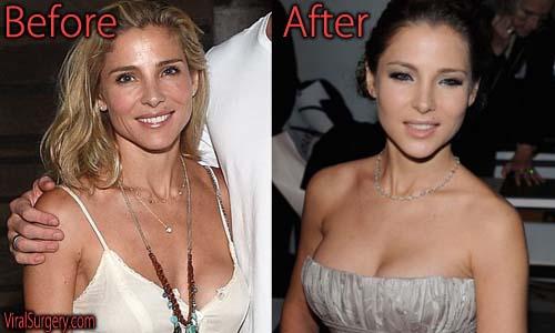 Elsa Pataky Plastic Surgery Boob Job
