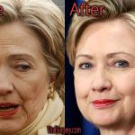 Hillary Clinton Plastic Surgery Before and After Pictures