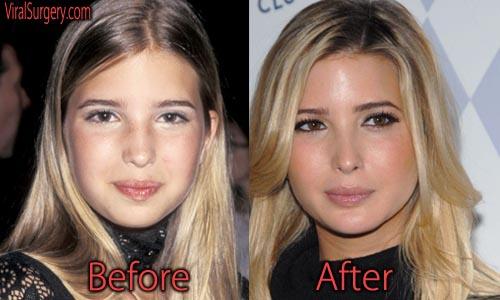 Ivanka Trump Plastic Surgery Picture