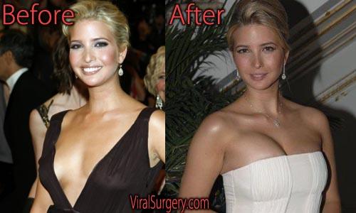 Ivanka Trump Plastic Surgery