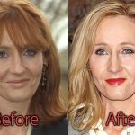 JK Rowling Plastic Surgery Before and After Pictures