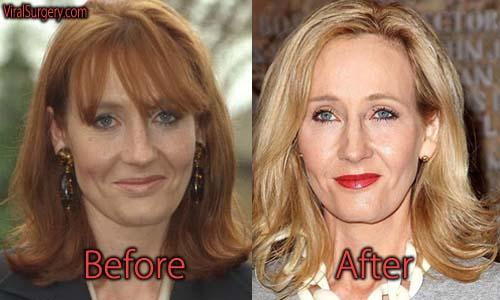 JK Rowling Plastic Surgery Picture