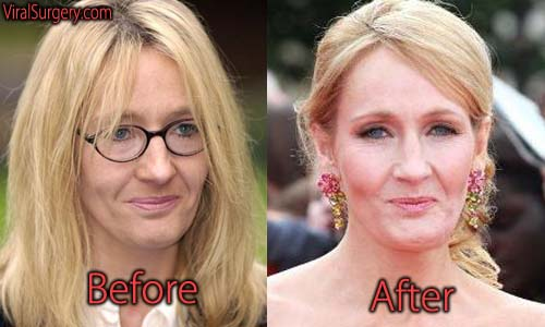 JK Rowling Plastic Surgery