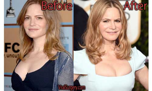 Jennifer Jason Leigh Plastic Surgery Picture