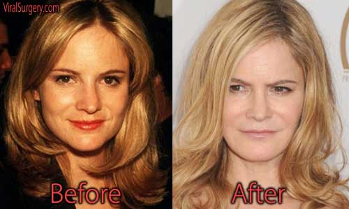 Jennifer Jason Leigh Plastic Surgery