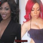 K Michelle Plastic Surgery Before and After Pictures