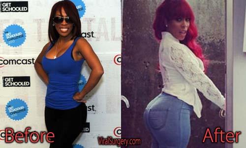 K Michelle Plastic Surgery Picture