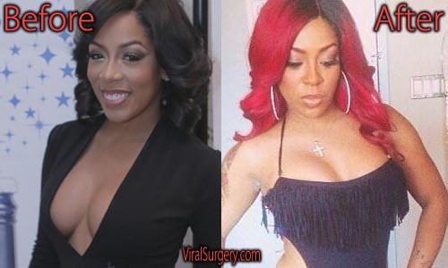 K Michelle Plastic Surgery