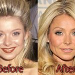 Kelly Ripa Plastic Surgery Before and After Pictures