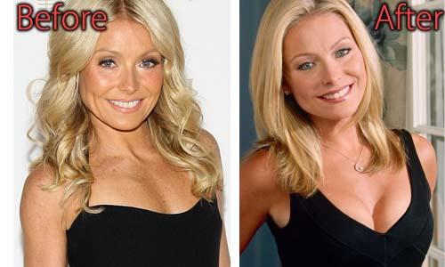 Kelly Ripa Plastic Surgery Picture