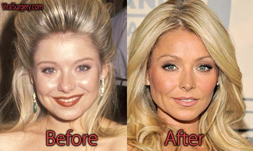 Kelly Ripa Plastic Surgery Before And After Botox Pictures
