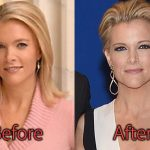 Megyn Kelly Plastic Surgery Before and After Pictures