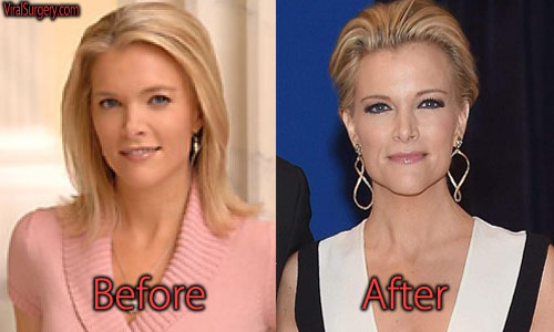 Megyn Kelly Plastic Surgery Picture