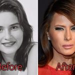 Melania Trump Plastic Surgery, Before and After Facelift Pictures