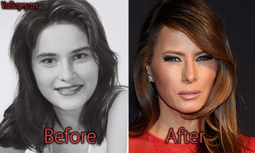 Melania Trump Plastic Surgery Before And After Facelift