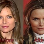 Michelle Pfeiffer Plastic Surgery Before and After Pictures
