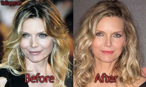 Michelle Pfeiffer Plastic Surgery Picture