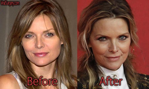 Michelle Pfeiffer Plastic Surgery Before And After Botox