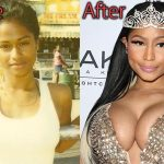 Nicki Minaj Plastic Surgery Before and After Pictures