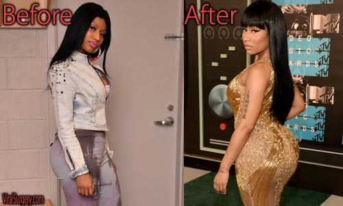 Nicki Minaj Plastic Surgery Picture