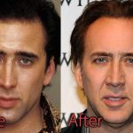 Nicolas Cage Plastic Surgery Before and After Pictures