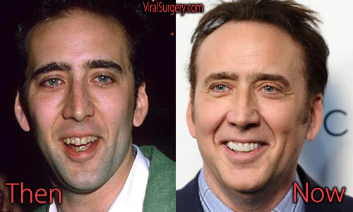 Nicolas Cage Plastic Surgery Picture