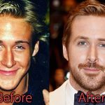 Ryan Gosling Plastic Surgery Before and After Pictures