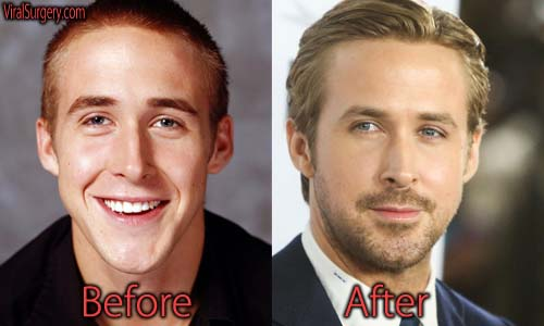 Ryan Gosling Plastic Surgery