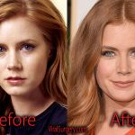 Amy Adams Plastic Surgery Before and After Nose, Boob Job Pics