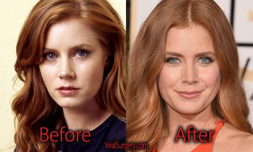 Amy Adams Plastic Surgery