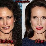 Andie MacDowell Plastic Surgery Before and After Pictures