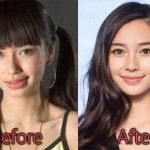 Angelababy Plastic Surgery Before and After Pictures