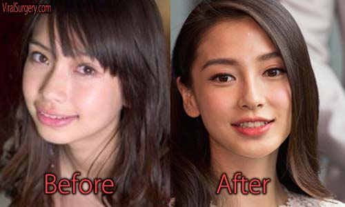 Angelababy Plastic Surgery Picture
