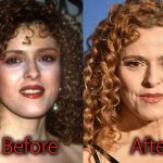 Bernadette Peters Plastic Surgery Before After Botox Pictures