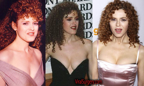 Bernadette Peters Plastic Surgery Boob Job