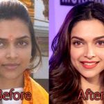 Deepika Padukone Plastic Surgery Before and After Pictures
