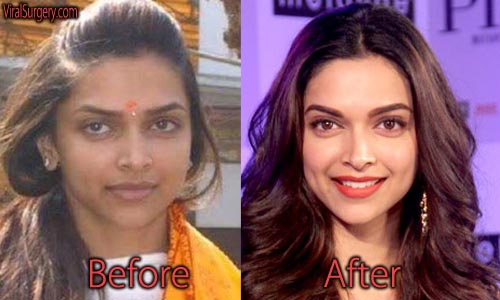 Deepika Padukone Plastic Surgery Before And After Nose