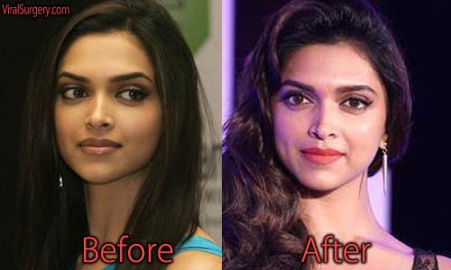 Deepika Padukone Plastic Surgery